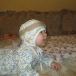 Мы очень довольны результатом лечения Ванечки шлемами